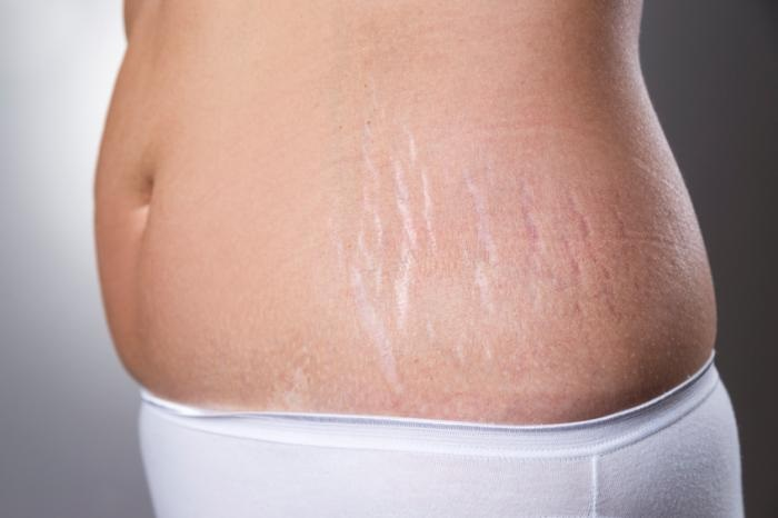 Learn How to Get rid of Your Stretch Marks