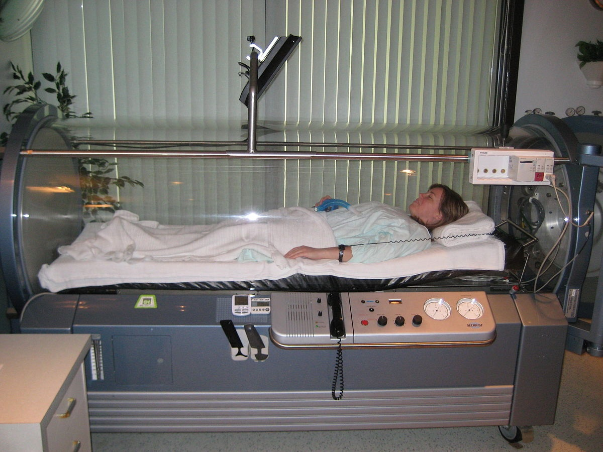 What You Need To Know About Hyperbaric Oxygen Therapy