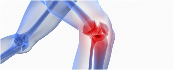 Chronic Knee Pain: What are the causes of knee pain?